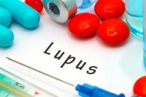 LUPUS Risk Factors